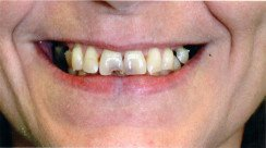 Mary's teeth after dental treatment in Kissimmee, FL