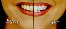 Teeth whitening in Kissimmee, FL