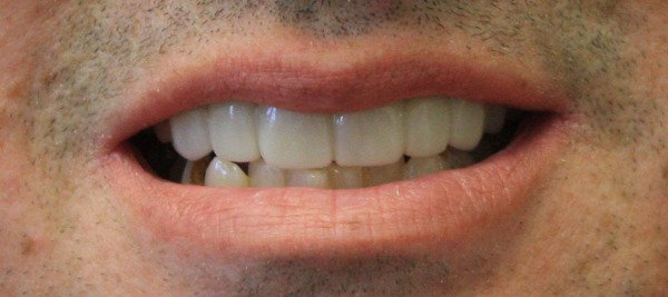 David teeth after dental work done in Kissimmee, FL