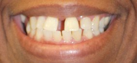 Victoria teeth before dental treatment at BVL Family Dental
