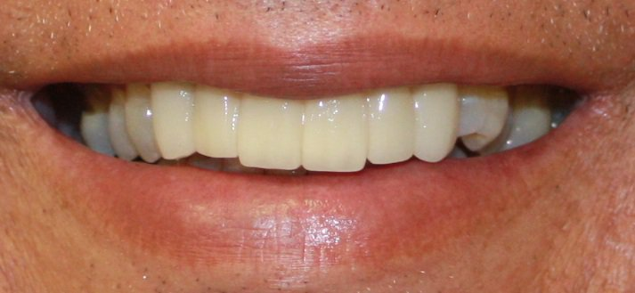 Alejandro teeth after dental work