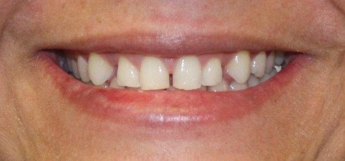 Ana teeth before dental treatment