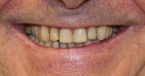Lan teeth before dental treatment