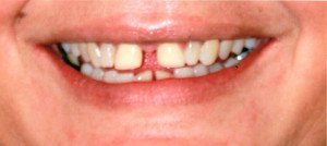 Maribel teeth before treatment