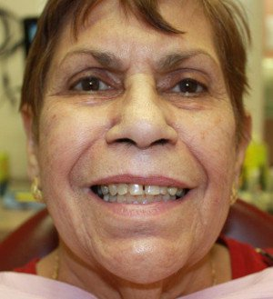 Dental treatment to Sixta by BVL Family Dental in Kissimmee, FL