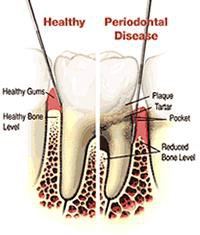 Check out Symptoms & Signs of dental issues