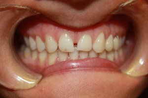 Tatiana teeth before dental treatment