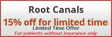 Limited time offer on root canal treatment